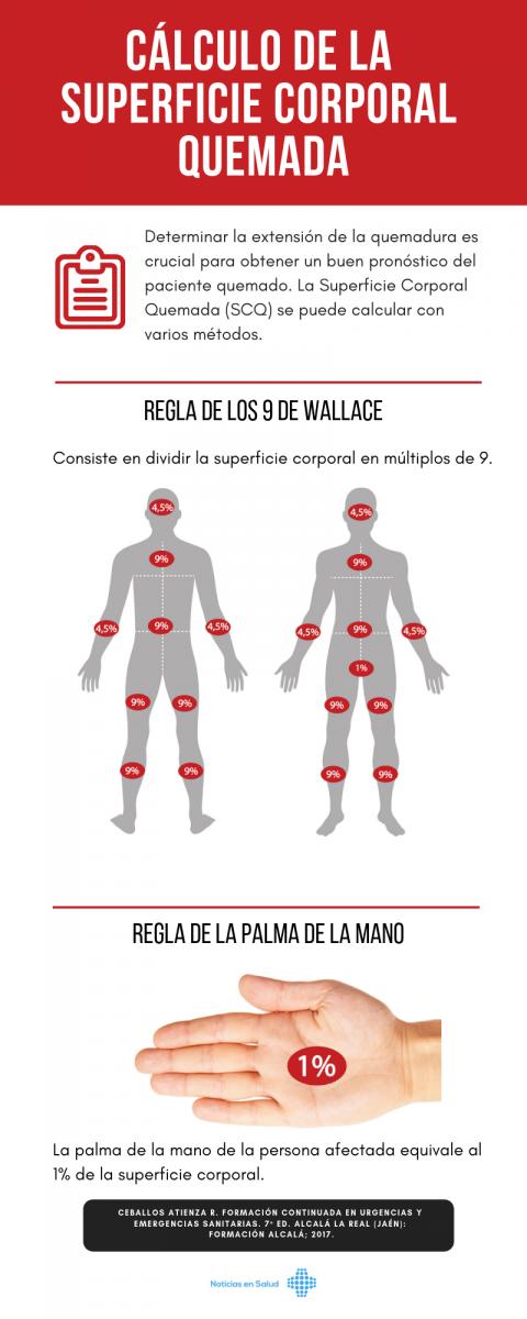 Cálculo de la superficie corporal quemada [Infografía]