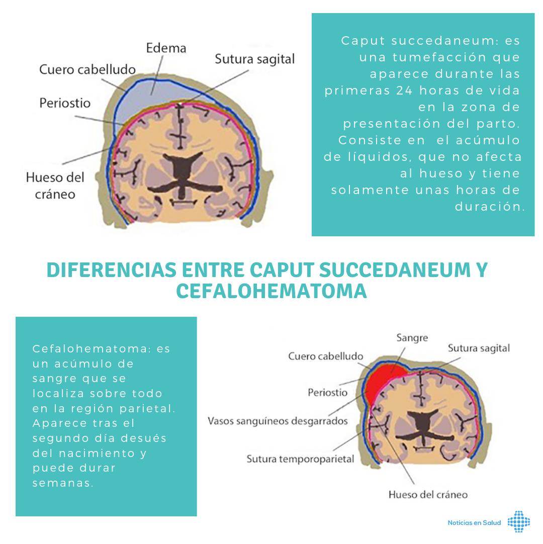 Diferencias entre Caput succedaneum y Cefalohematoma [Infografía]