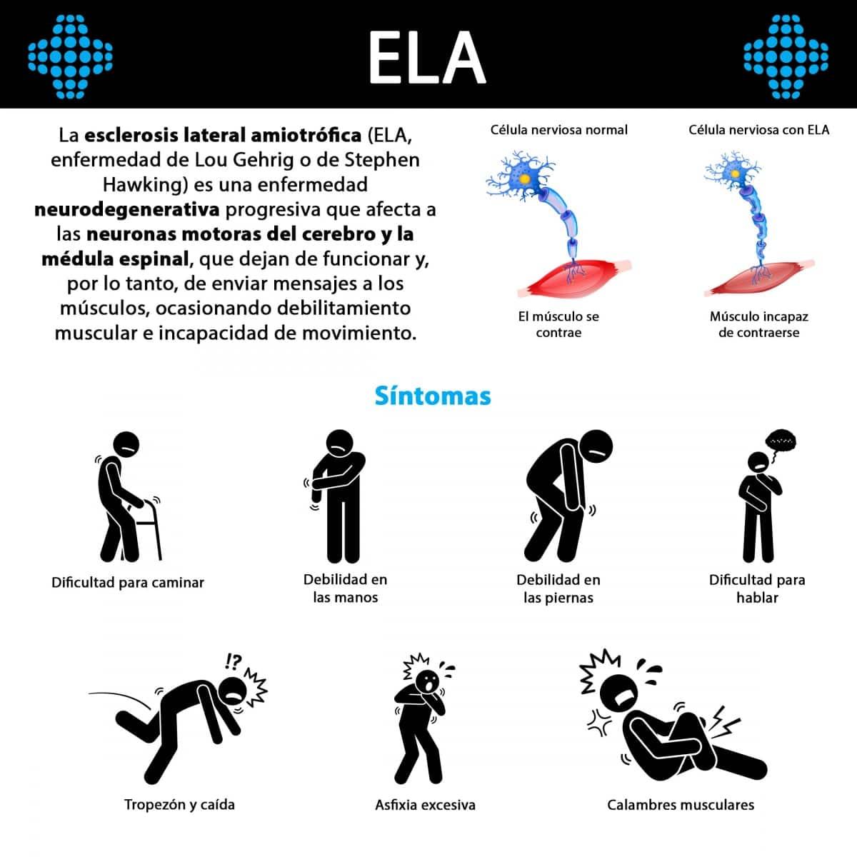 ¿Qué es la ELA?