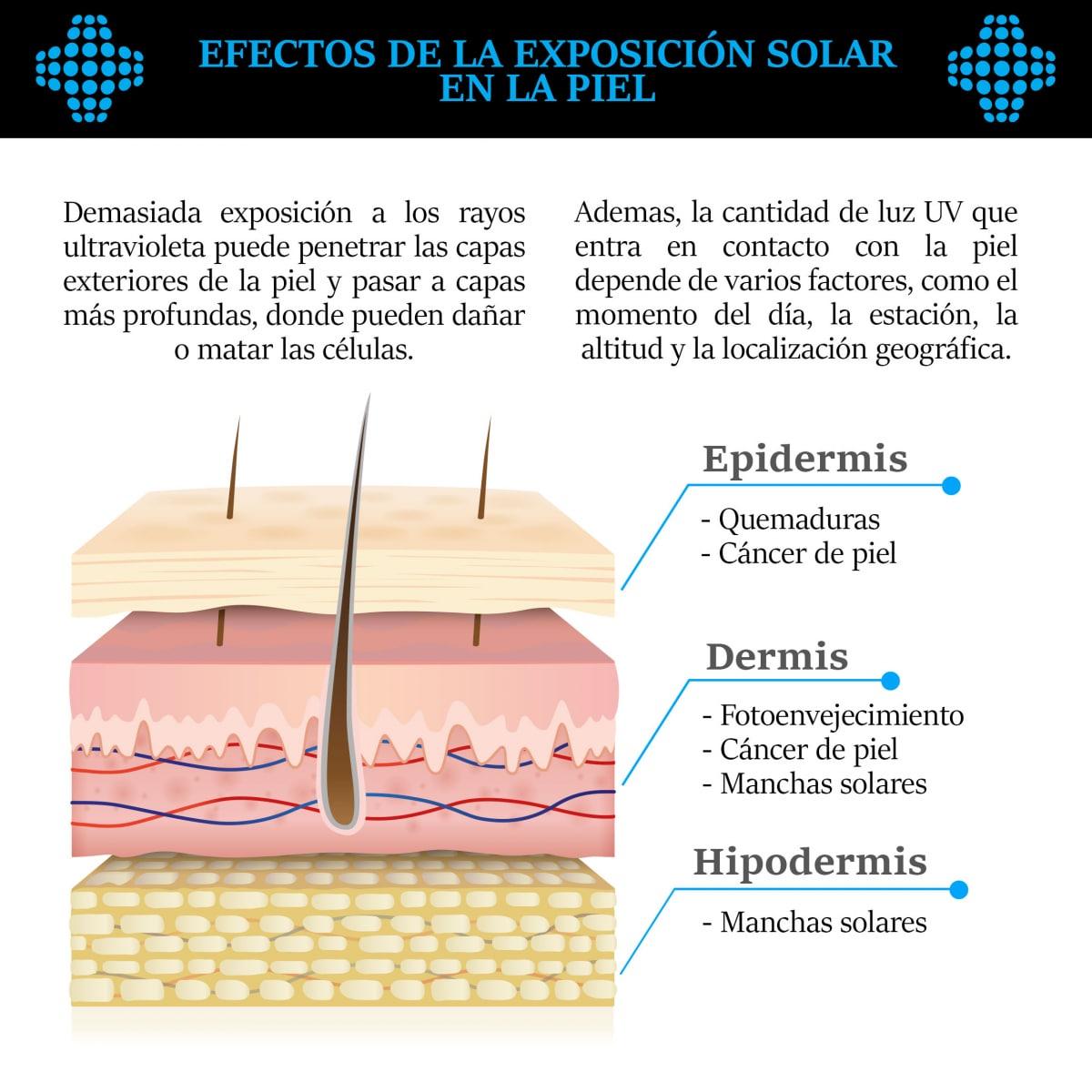 Efectos de la exposición solar en la piel