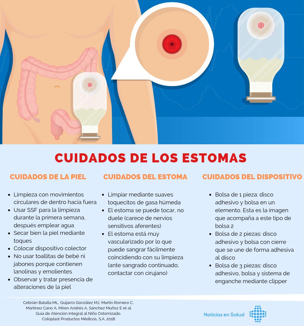 Cuidados de los estomas [Infografía]