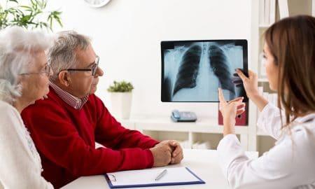 Nuevas vías mejoran el abordaje del paciente con cáncer de pulmón