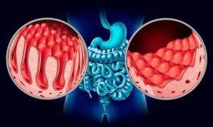 Enlace bacterias en enfermedad celiaca