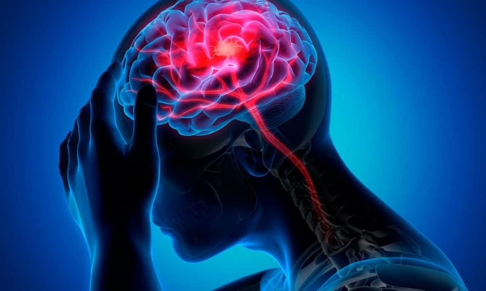 La fusión de las decisiones de migraña crónica y migraña episódica de alta frecuencia es potencialmente dañina