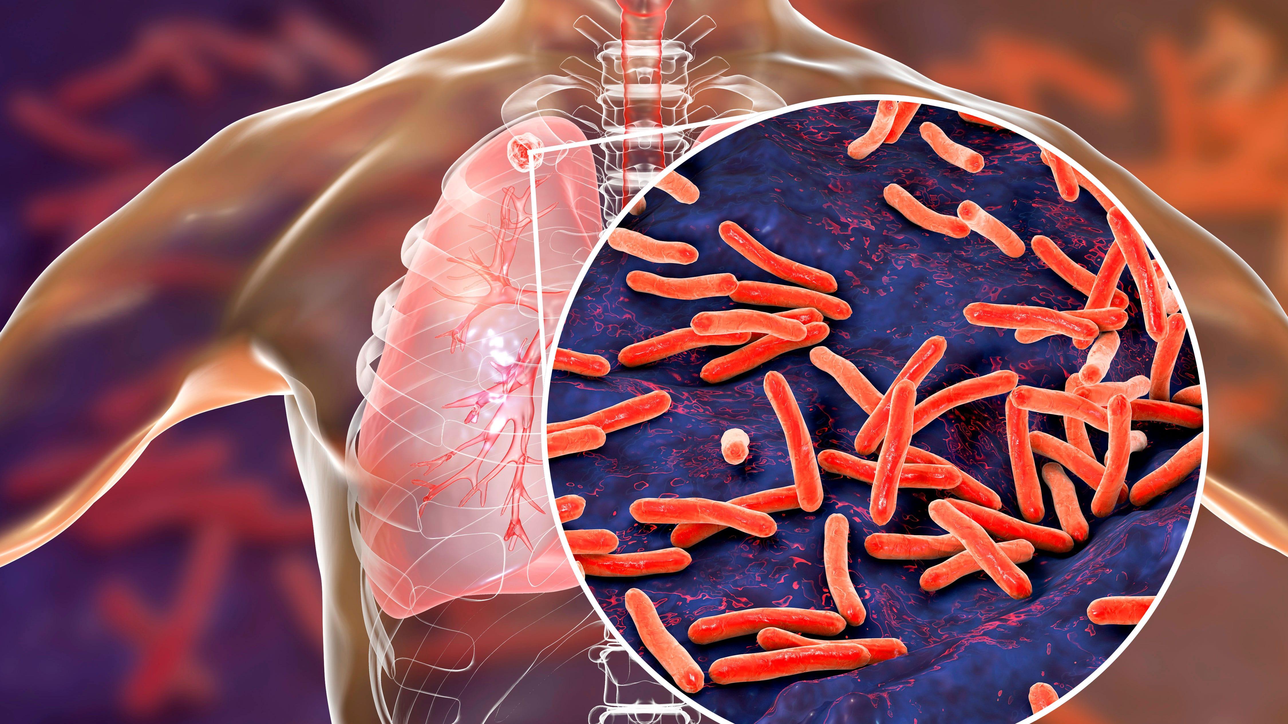 OMS: La pandemia de coronavirus pone en peligro los avances en la lucha mundial contra la tuberculosis